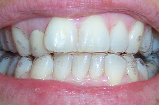 Pictures Wearing Invisalign Braces Before attachments