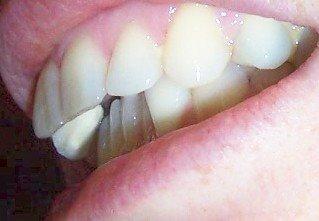 Overjet before Invisalign English teeth
