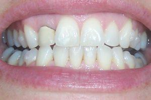 teeth nov 09 set 23