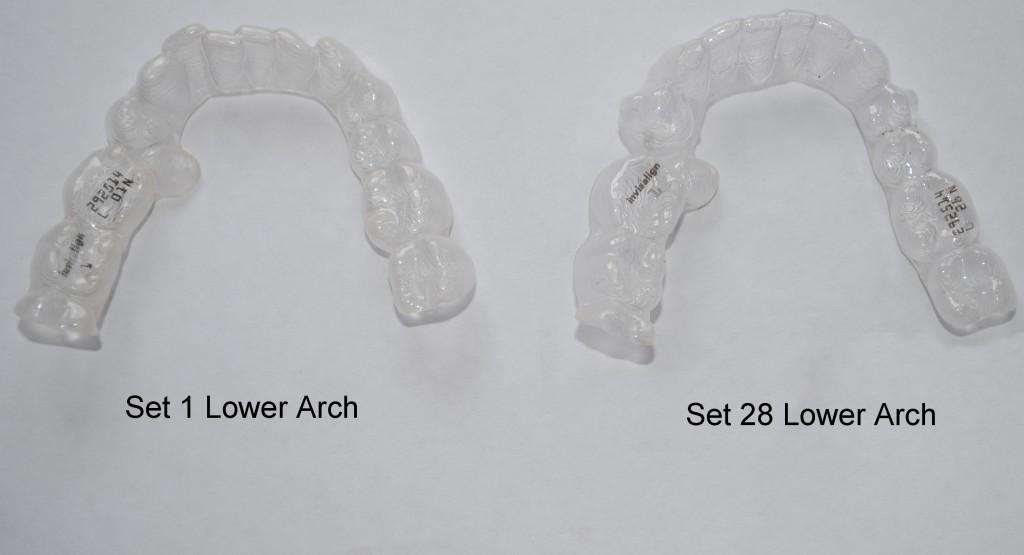 lower arch comparison 28