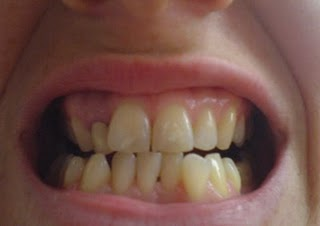 Invisalign with a crown- before treatment