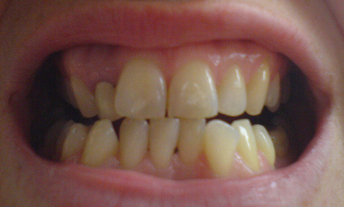before invislalign teeth2