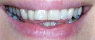 Teeth Front View Before Invisalign Treatment