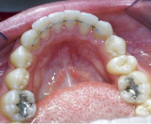 Clear Retainers Or Fixed Retainers