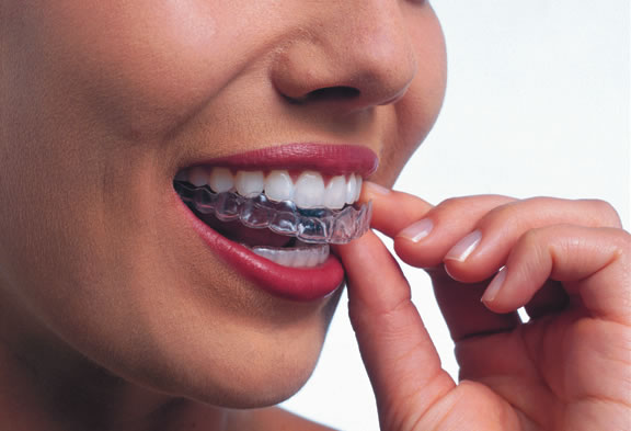 How To Remove Invisalign - start at the back. Image of woman removing invisalign trays